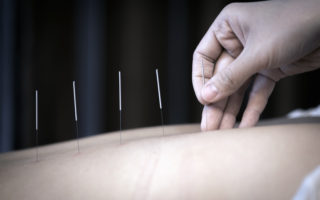 The physiotherapist is doing acupuncture on the back of a female patient. Patient is lying down on a bed.